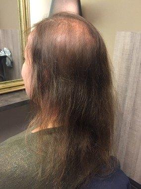 haarziektes